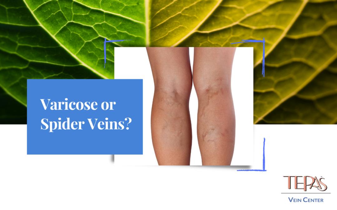 Varicose or Spider Veins?